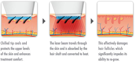 How Much Does Laser Hair Removal Cost How Much Does Cost